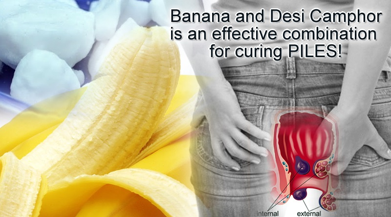 Banana and Desi Camphor to cure piles problems in easy way!