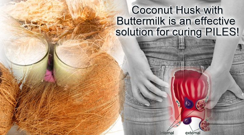 Use of coconut husk with buttermilk for curing piles problems!