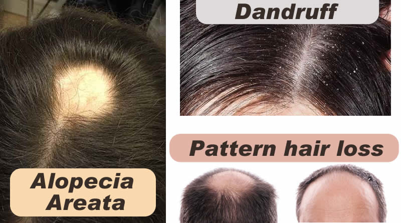 Know about Hair and about Alopecia areata, Pattern hair loss and Dandruff