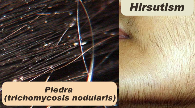 Know about Hair and about Piedra, trichomycosis nodularis and Hirsutism