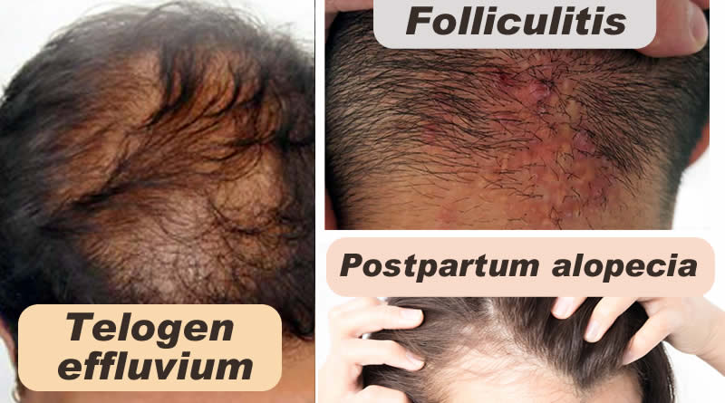 Know about Hair and about Telogen effluvium, Postpartum alopecia and Folliculitis