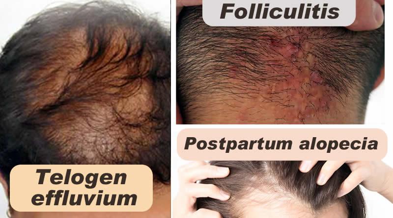 how to stop telogen effluvium