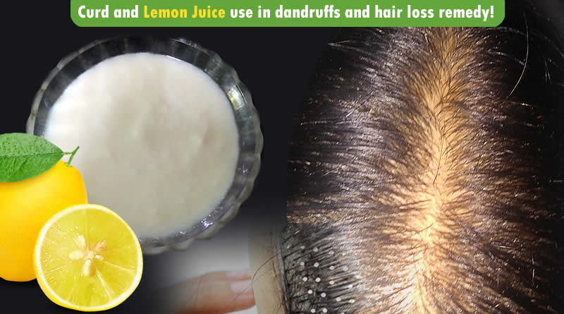 Curd and Lemon Juice use in dandruffs and hair loss remedy!