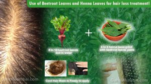 Use of Beetroot Leaves and Henna Leaves for hair loss treatment!