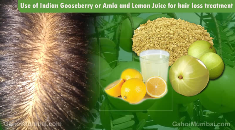 Information about use of Indian Gooseberry or Amla and Lemon Juice for hair loss remedy!