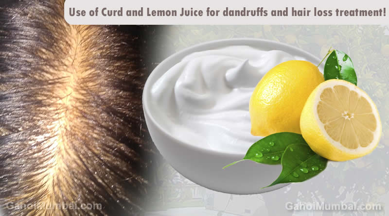 Information about Use of Curd and Lemon Juice for dandruffs and hair loss treatment!
